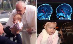 Family believes Pope's kiss helped shrink baby's brain tumor