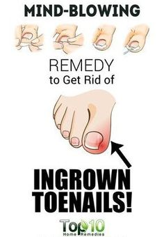 Home Remedies for Ingrown Toenails – Toned