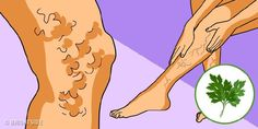 More than of adults have varicose veins. Varicose veins can be caused by hormonal imbalance, prolonged sta Herbal Remedies, Natural Remedies, Avocado Health Benefits, Ear Infection, Ulcerative Colitis, Hormone Imbalance, Varicose Veins, Rodin, Aloe Vera