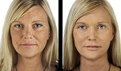 When you fully understand the best way to do things you can get to your healthy and balanced skin objectives. Attractive skin starts off with good skincare. Discover how to stick to a better plan. Cheek Lift, Brow Lift, Cellulite Oil, Lip Augmentation, Allergy Testing, Skin Regimen, Dermal Fillers, Best Moisturizer, Anti Aging Treatments