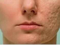 Протрите этим любой шрам, морщину или пятно на коже и посмотрите, как они исчезнут через несколько минут! Даже врачи удивлены!