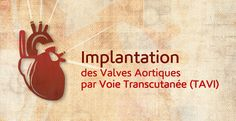 """The Faculty of Medicine and Medical Sciences at The Holy Spirit University of Kaslik (USEK) is organizing a conference entitled """"Transcatheter Aortic-Valve Implantation (TAVI)"""".    This conference, hosted by the Faculty of Medicine and Medical Sciences, will take place on Saturday, November 10, 2012, at 11:00, in the Jean El Hawa Auditorium, USEK Main Campus.   http://www.usek.edu.lb/en/NewsDetails.aspx?pageid=12654"""