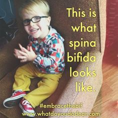 """If you're wondering, """"What does spina bifida look like?"""" we can fill you in..."""