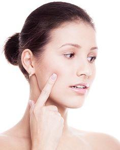 """sick of """"Uneven Skintone""""......try these simple remedies!!!  चेहरे की असमान रंगत से परेशान? Try करें ये घरेलु नुस्खे"""