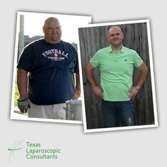 LETS HEAR IT FOR TLC SURGERY FEATURED PATIENT, BRIAN!  Brian's gastric sleeve resection was performed by Dr. Sherman Yu. Here he is featured before and just over ONE YEAR AFTER his weight loss surgery. YOU GO BRIAN!!  Learn more about vertical sleeve gastrectomy: http://www.tlcsurgery.com/education/bariatric-surgery-houston-tx/sleeve-gastrectomy-houston-tx/