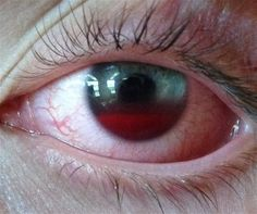 Accumulation of red blood cells within the anterior chamber is referred to as a hyphema. A history of trauma or recent ocular surgery are the most common risk factors. However, a seemingly spontaneous hyphema can result at times from other causes.