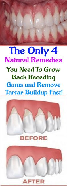Only 4 Natural Remedies You Need To Grow Back Receding Gums and Remove Tartar Buildup Fast! The Only 4 Natural Remedies You Need To Grow Back Receding Gums and Remove Tartar Buildup Fast! Gum Health, Dental Health, Oral Health, Health Care, Teeth Health, Dental Care, Health Remedies, Home Remedies, Natural Remedies
