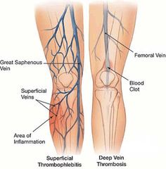venous valves in great saphenous vein - google search | vascular, Human Body