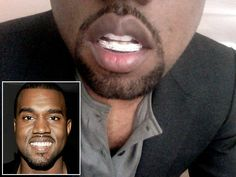 """Yeezy said what? """"Ill Grills: Celebrity teeth makeovers"""" from NY Daily News http://nydn.us/H2kHlL"""