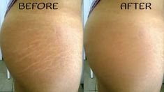Before and after stretch marks-I used this method for two weeks and it works!! It got rid of them almost completely.