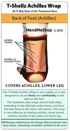 Haglunds Syndrome (deformity) treatment option through the usage of electromagnetic energy. The T-Shellz wrap helps keep pressure off the bursa and the Achilles tendon more extensible - reducing friction against the bony protusion associated with Haglunds Natural Cures, Natural Healing, Epidermoid Cyst, Skin Bumps, Deep Tissue, Weight Loss Drinks, New Skin, Physical Therapy, Herbal Remedies