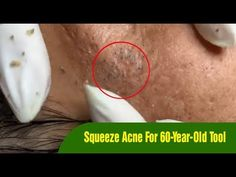 Nặn Mụn Cho Cụ Ông 60 Tuổi - Mụn Lâu Năm Cứng Quá Trời - Squeeze Acne For 60-Year-Old Tool - YouTube Deep Blackheads, Pimples, Old Tools, Facial Skin Care, Acne Treatment, Youtube, Vintage Tools, Youtubers