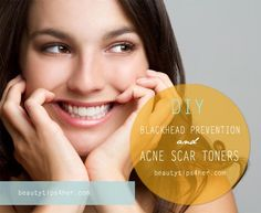 Blackhead Prevention Toner and Acne Scar Toner | Beauty and MakeUp Tips