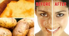 Beauty Secrets - The everyday products we eat can also become ingredients for homemade beauty solutions. We at Bright Side found 8 amazingly simple recipes, and we want to share them with you. Take note, and share your own recipes in the comments! Healthy Oils, Healthy Skin, Skin Care Regimen, Skin Care Tips, Cleopatra Beauty Secrets, Everyday Food, Homemade Beauty, Beauty Hacks, Beauty Solutions