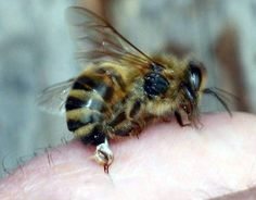 How to Treat a Bee Sting via www.wikiHow.com