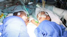 Formerly conjoined twins Lydia and Maya after the operation to separate them (10 December)