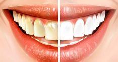 Gør dette i 15 minutter før du børster tænder – se så den store forskel
