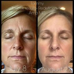 Redifine and AMP MD Roller Rodan + Fields Before and after