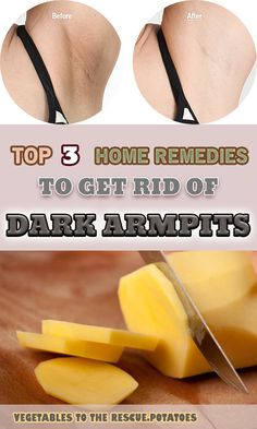 The armpits are a very sensitive part of your body and their aspect can sometimes influence other's opinion about yourself, but also can make you feel uncomfortable in public. And you cannot find a solution for those dark patches, no matter how much you look for it. Fortunately, we can save your day. But, first …