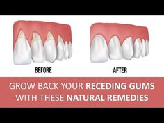 Gum disease, also known as gingivitis, is a common condition characterized by symptoms like persistent bad breath, red or swollen gums, ...