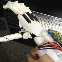 Youbionic Hands-Free in Action #bionic #hand #robot #design #DIY #industrialdesign #prosthetics #3dprinting #3dprint #3dprinted #cosplay #cyborg #mechatronics #medical #biomedical #technology #amazing #style #cool #ironman #maker #arduino #RaspberryPi #mechanics #render #animation by youbionic