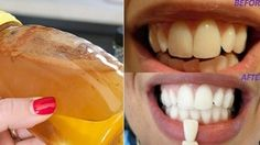 Gargle With This Simple Ingredient And See What Happens To Your Teeth! (Gargle With This Simple Ingredient And See What Happens To Your Teeth! Teeth Whitening Remedies, Natural Teeth Whitening, Teeth Care, White Teeth, Natural Home Remedies, Oral Health, Teeth Health, Dental Health, Health Advice