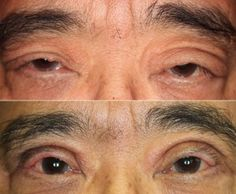 Before & After Result of Patient With Severe Upper Eyelid Swelling & Upper Eyelid Entropion By Dr. John Burroughs, Colorado Springs Plastic Surgeon.  John R. Burroughs, MD PC Cosmetic & Reconstructive Surgery of the Eyelids, Face, and Orbits www.drjohnburroughs.com 719-473-8801 Colorado Springs, Canon City, Pueblo
