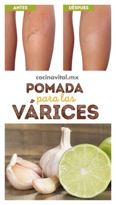hacer pomada de ajo y para las Existen muchos … How to make garlic and lemon ointment for varices There are many products on the market that can be very expensive, save and check how to make a garlic and lemon ointment for vices. Herbal Remedies, Health Remedies, Natural Remedies, Varicose Vein Remedy, Varicose Veins, Health And Beauty Tips, Health And Wellness, Health Fitness, Diy Hairstyles