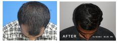 Hair loss gallery - Photos of cases treated successfully at Dr. Priya's Treatment of hair loss, hair thinning, baldness etc.  If you suffer the same, Appoint today.