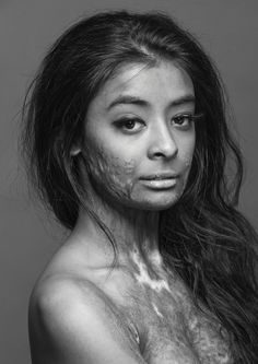 """This beautiful model, a burn survivor, did this photo shoot to, in her own words, """"prove that scars do not change a person, they make that person who they become."""" As a women with scars, I really appreciate this picture so much. I've stopped hiding my scars a few years ago, but this picture just enforces my decision. Biddy Craft"""