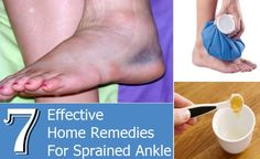 Effective-Home-Remedies-For-Sprained-Ankle.jpg (580×356)