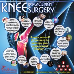 Find best Orthopedic/Knee Surgery Medical Centers in Mexico. PlacidWay helps you find affordable Orthopedic/Knee Surgery Hospitals and Clinics in Mexico Runners Knee, Knee Replacement Surgery, Heart Care, Bone Diseases, Knee Surgery, Arthritis Symptoms, Cardiovascular Health, Knee Pain, Medical Conditions