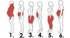 Obesidade não é uma questão de preto ou branco. Existem muitas causas para a obesidade, e muitos modos diferentes para tratá-la. Alguns métodos funcionam para uns e para outros não. Um recente estudo da saúde desenvolvido nos EUA deu uma olhada sobre um grupo de 4.000 adultos obesos e foi possível colocá-los em seis grupos distintos. Mulheres jovens e saudáveis – as mulheres que eram obesas, mas geralmente tiveram menos complicações relacionadas com a obesidade. Homens bebedores – como…