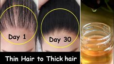 Hair loss Apply this Oil Every Night & Turn Thin Hair to Thick Hair in 30 Days - Hair Growth Oil - Y Thinning Hair Remedies, Hair Remedies For Growth, Hair Growth Treatment, Hair Growth Tips, Hair Care Tips, Treatment For Thinning Hair, Oil For Hair Growth, Healthy Hair Remedies, Hair Loss Remedies