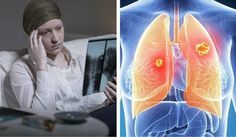 Lung Cancer- Symptoms and How to Prevent on Time! Lung cancer is one of the most common cancers among women in the population today. In fact, it is even more deadly than uterine or breast cancer...find more here: http://worldhealthchoice.com/lung-cancer-symptoms-prevent-time/