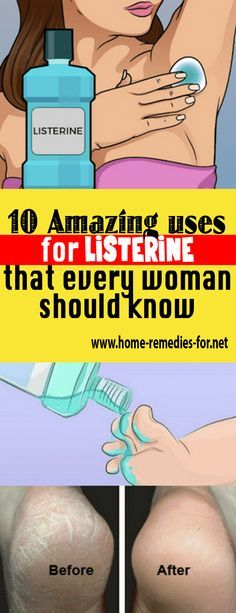 10 Amazing uses for #Listerine that every woman should know #remedy #health #healthTip #remedies #beauty #healthy #fitness #homeremedy #homeremedies #homemade #trends #HomeMadeRemedies #Viral #healthyliving #healthtips #healthylifestyle #Homemade