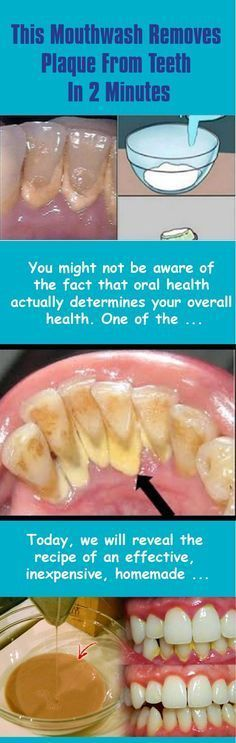 #hygiene #health #mouth #teeth #clean