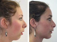 Before and After Jaw Surgery Orthognathic Surgery, Facial Procedure, After Surgery, Faces, London, The Face, Face, London England