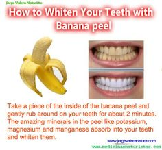 Whiten your teeth with banana peel - Click image to find more DIY & Crafts Pinterest pins