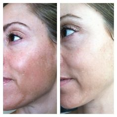 This is Stacey...Rodan + Fields Reverse regimen - this is my before/after photo (no makeup) 8 weeks into the 4-6 month regimen! I'm so excited!!! Reverse is for sun damage: age spots, brown spots, freckles, melasma (which is what I have).