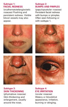 All About Rosacea | Rosacea.org. What are the four types of rosacea?