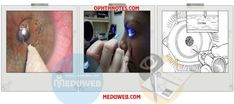 Recurrent corneal erosion syndrome (RCES)