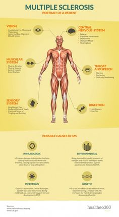 Are you at risk for Multiple Sclerosis? An infographic detailing the causes and symptoms of Multiple Sclerosis.