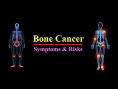 Bone Cancer Symptoms    Find Your Bone cancer Risks