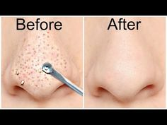 Today in this post we will share 2 easiest natural ways to remove blackheads… Blackhead Remedies, Blackhead Remover, Acne Remedies, Holistic Remedies, Health Remedies, Remove Blackheads From Nose, Removal Of Blackheads, How To Treat Blackheads, Pimples