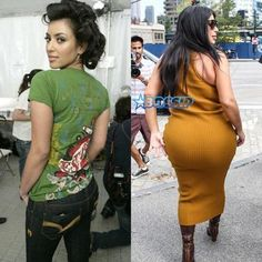 Kim Kardashian is an American reality TV personality, Socialite, Actress, Business Woman and Model. Bad Plastic Surgeries, Plastic Surgery Photos, Celebrity Plastic Surgery, Kardashian Plastic Surgery, Plastic Surgery Gone Wrong, Kardashian Style, Kardashian Jenner, Kardashian Kollection, Kim Kardashian Without Makeup