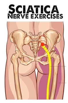 Sciatic Nerve Exercises, Sciatica Stretches, Back Pain Exercises, Hip Flexor Exercises, Hip Stretching Exercises, Posture Exercises, Hip Pain Relief, Sciatica Pain Relief, Sciatic Pain