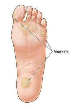 Calluses can impact athletic performance. Foot Remedies, Beauty Makeover, Food Therapy, Cosmetic Treatments, Knitted Flowers, Homemade Cosmetics, Natural Cosmetics, Feet Care, Pedicure