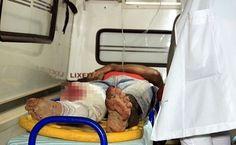 Trânsito, Motociclista tem a perna dilacerada em acidente