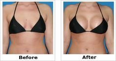 http://mkthlth1.digimkts.com The most obvious benefit breast enhancement via augmentation, enhanced breast size, can create a sense of wholeness and vibrance.  Enlarge The Breasts In A Short Period With This Simple Recipe